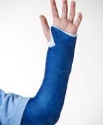 Can a Broken Arm Break a Family?